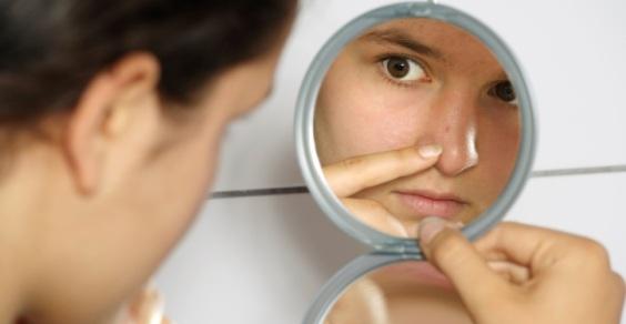 rimedi_naturali_acne