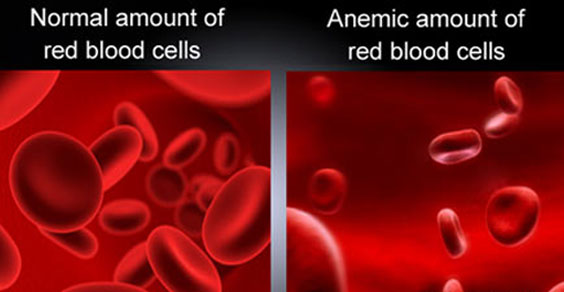 anemia cause