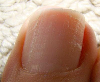 unghie sfaldano