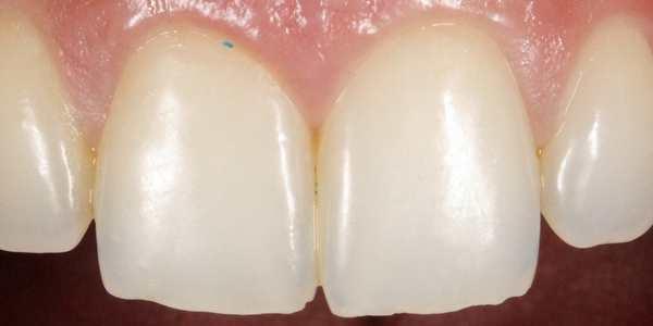 microgranuli denti dentifrici