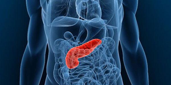 pancreas-tumore