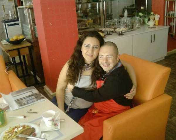 sindrome di down ristorante 2