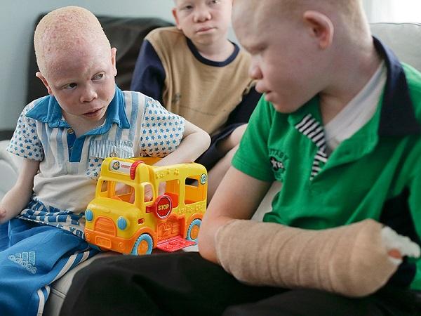 storia bimbo albino 003