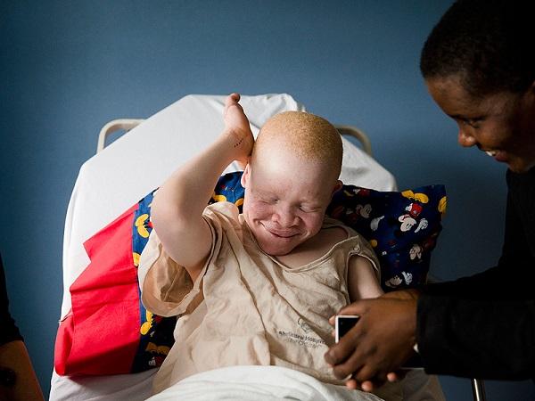 storia bimbo albino 005