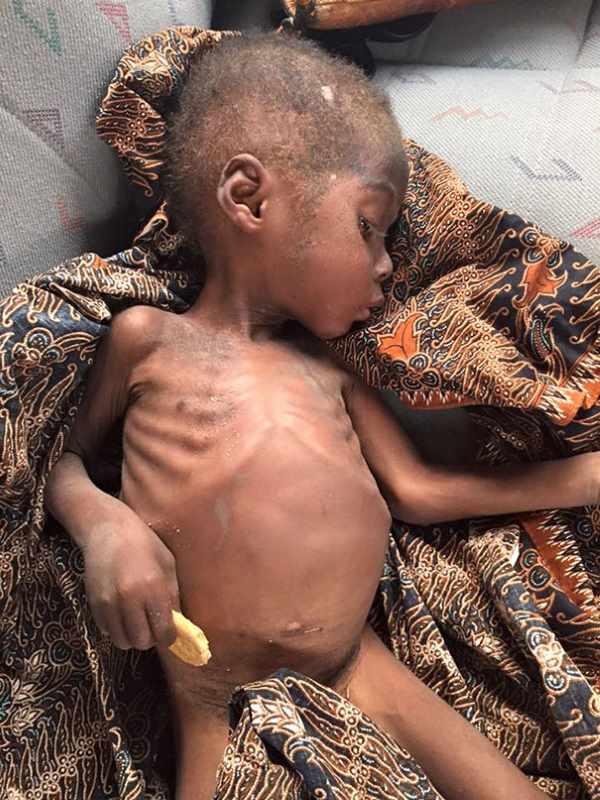 hope bambino nigeriano stregone5