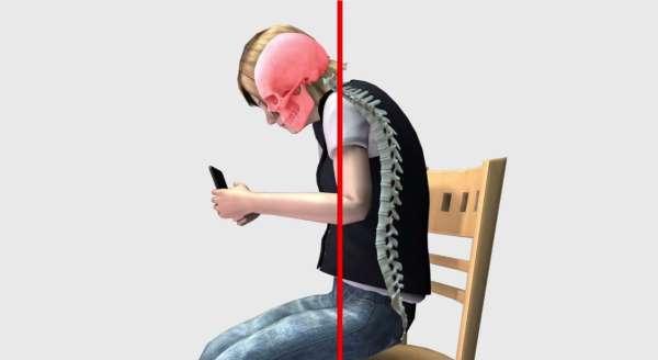 spina ricurva