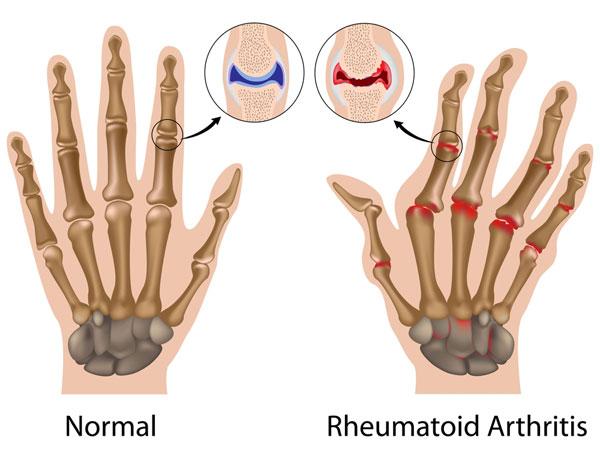 artrite reumatoide infograf