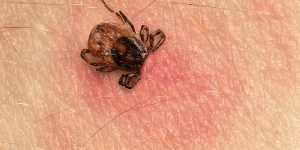 Zecche e malattia di Lyme