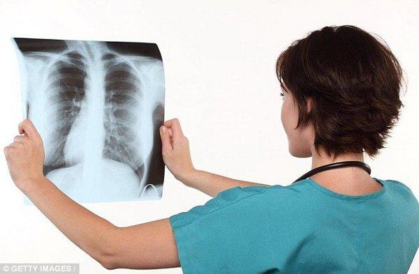 detersivi polmoni 2