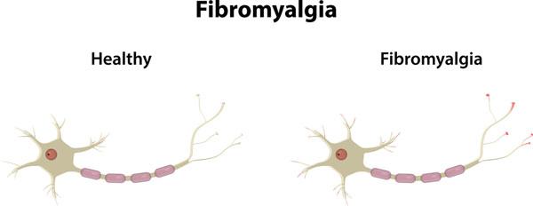 fibromialgia nervi
