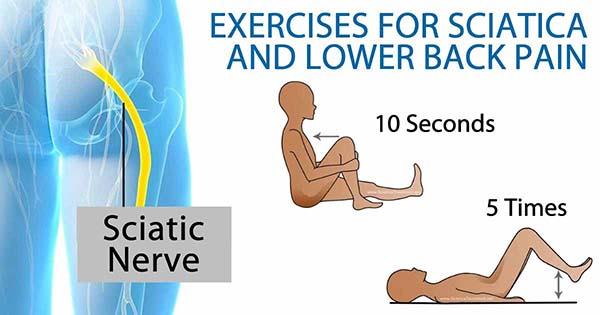 esercizi sciatica