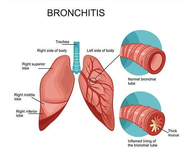 bronchite infografica