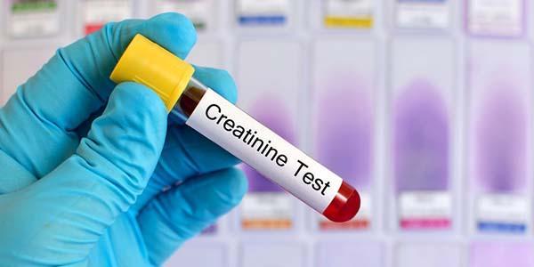 Creatinina test