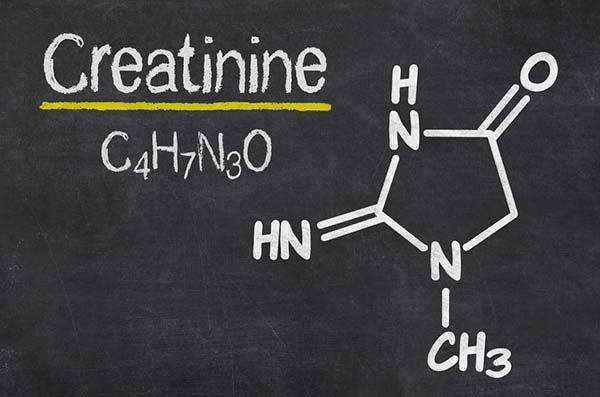 creatinina 2