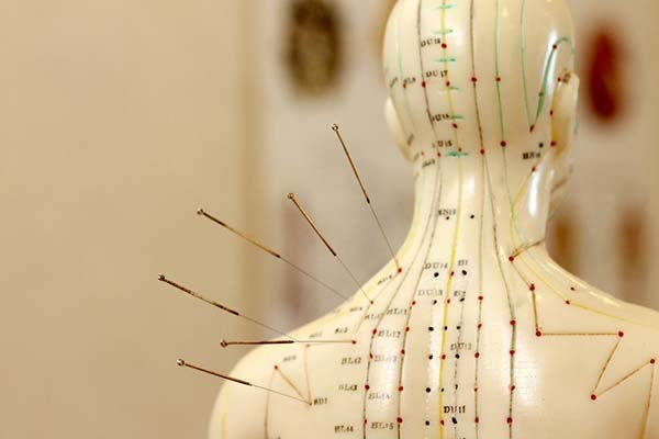 agopuntura meridiani