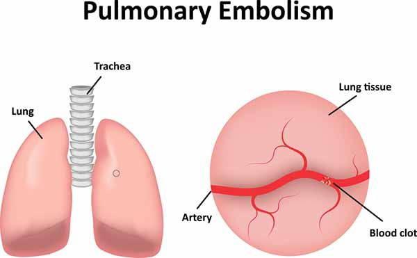 embolia polmonare infografica