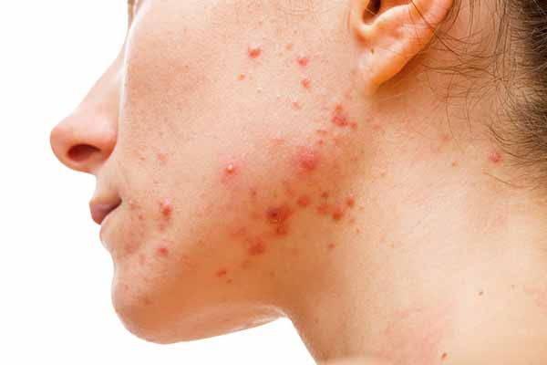 acne brufoli