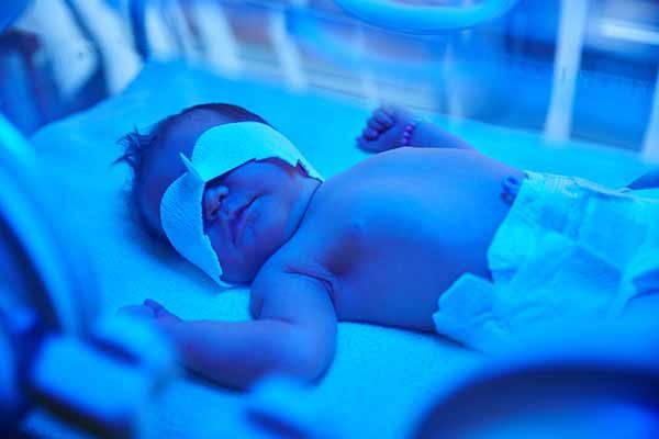 ittero neonato
