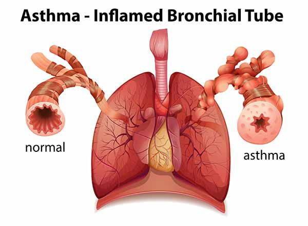 asma rappresentazione