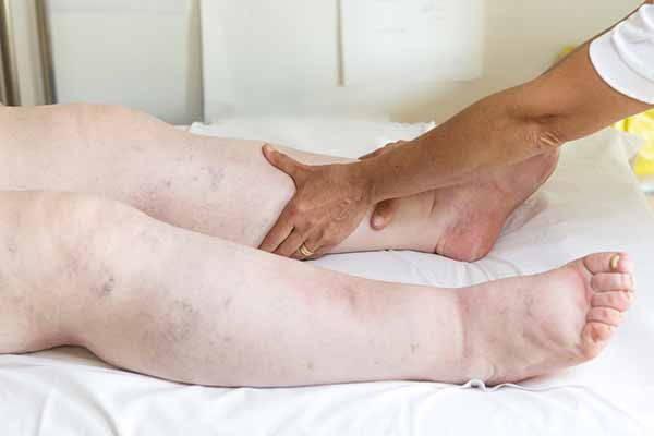 edema gambe