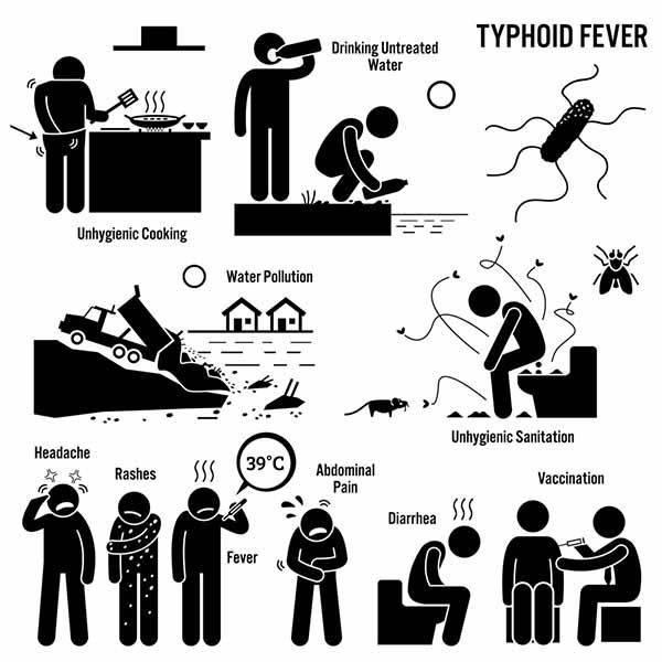 febbre tifoide