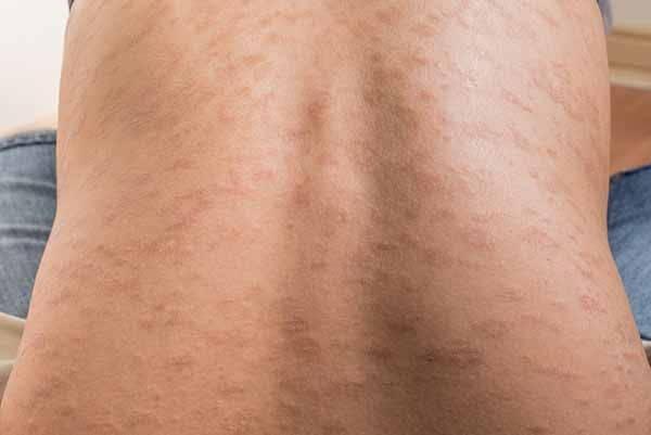 orticaria schiena