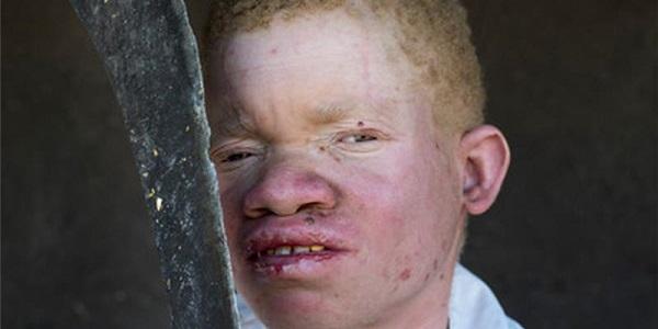 albinismo_malawi_01.jpg