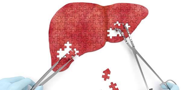 fegato-sintomi