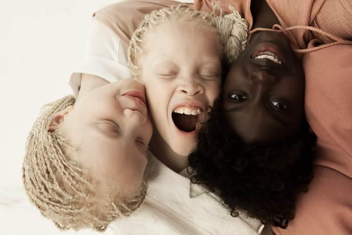gemelle-albine