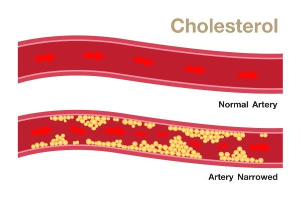 colesterolo alto 2