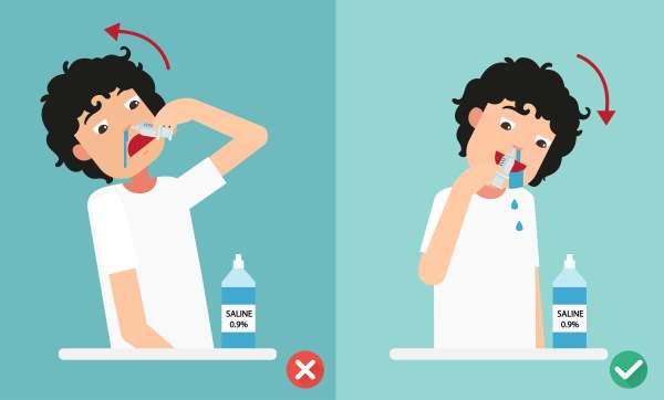 lavaggio nasale
