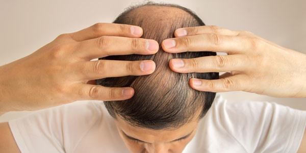 capelli alopecia