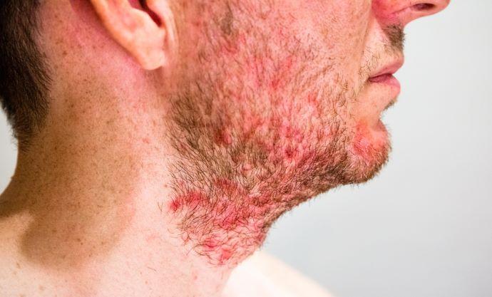 dermatite seborroica 2