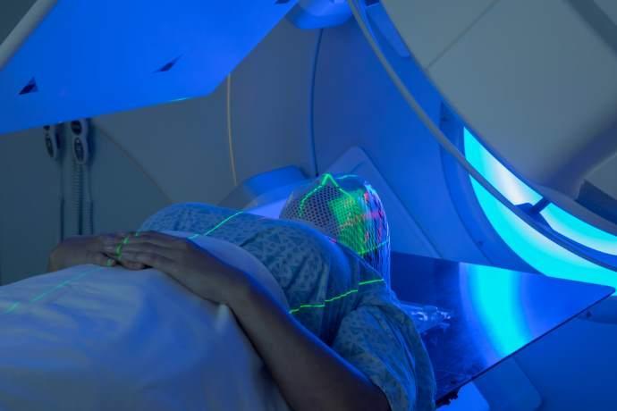 tumori laser