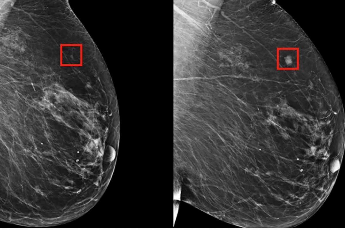 tumore-seno-mit