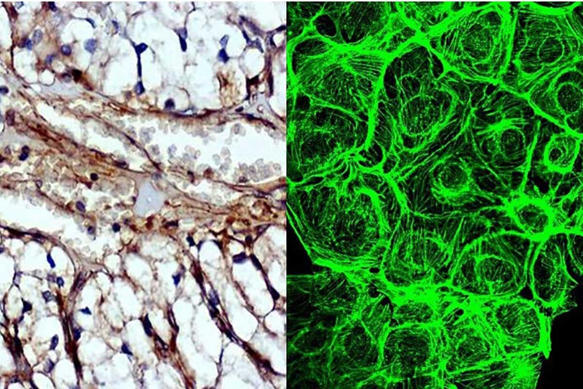 proteina-tumori