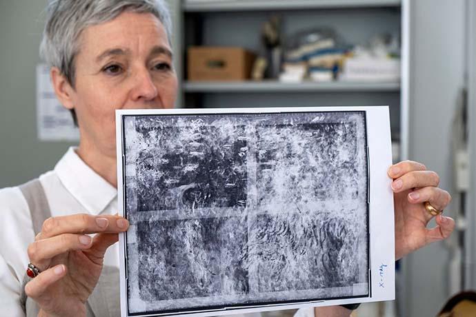 radiografia-glicini