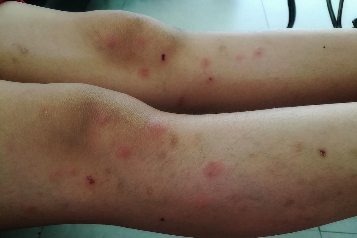 Bubboni sulle gambe dei bagnanti