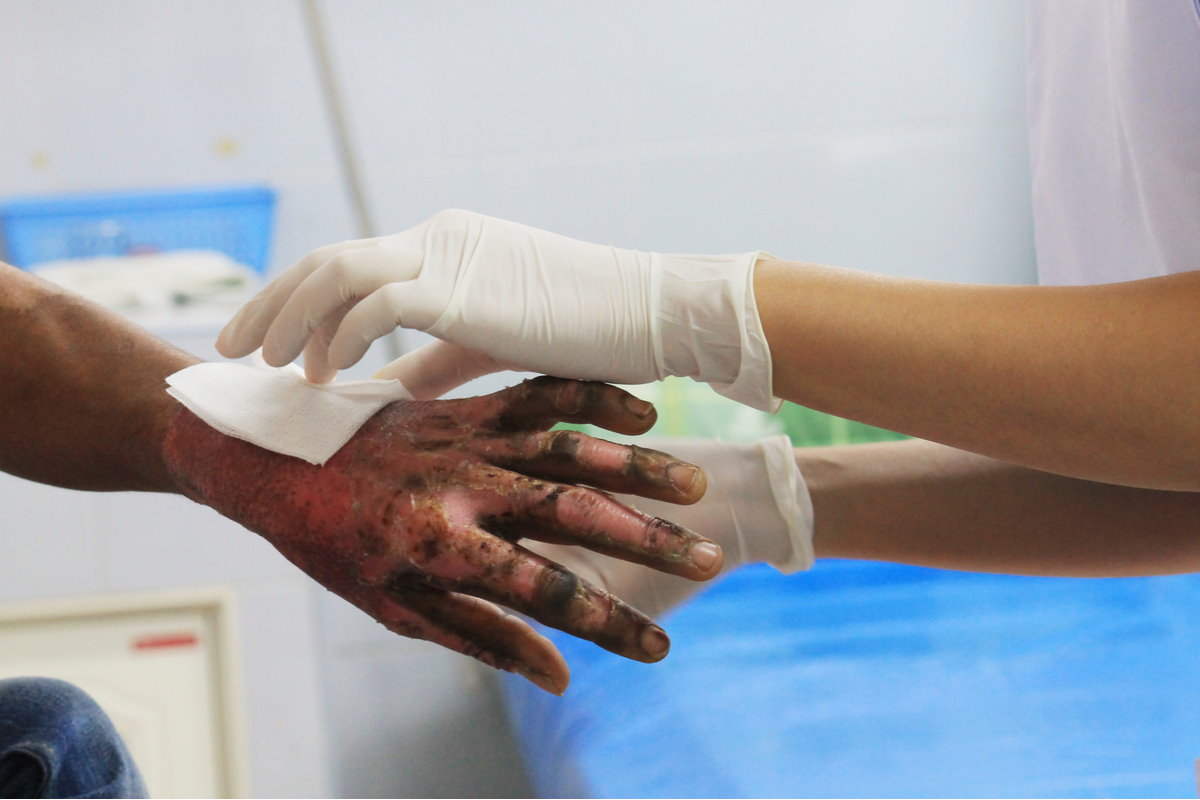 pelle-artificiale-staminali