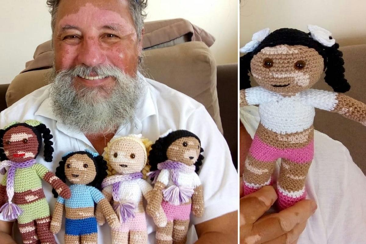 Bambole con vitiligine