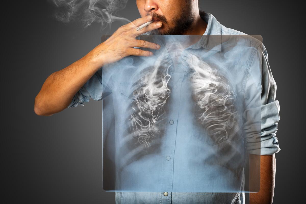 polmoni-fumatori