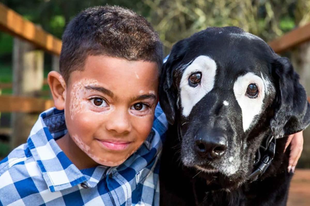 bambino-cane-occhi-bianchi
