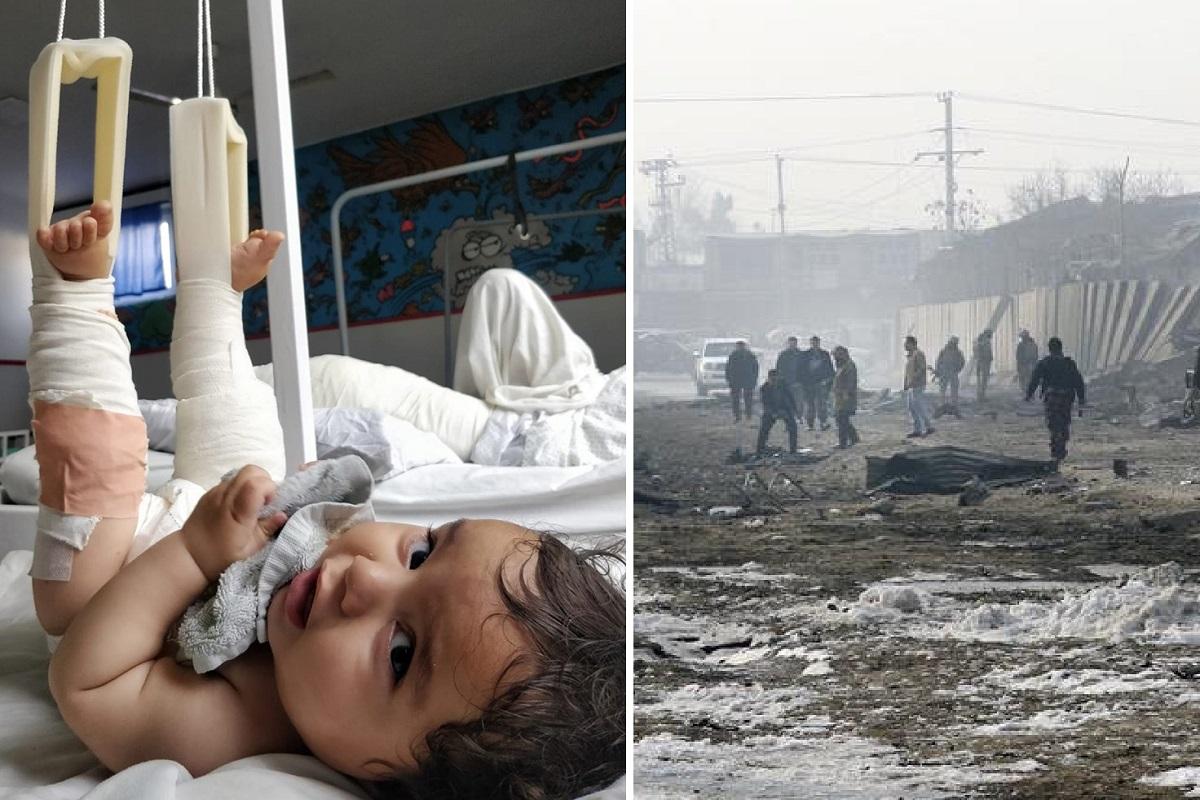 Bambino ferito a Kabul