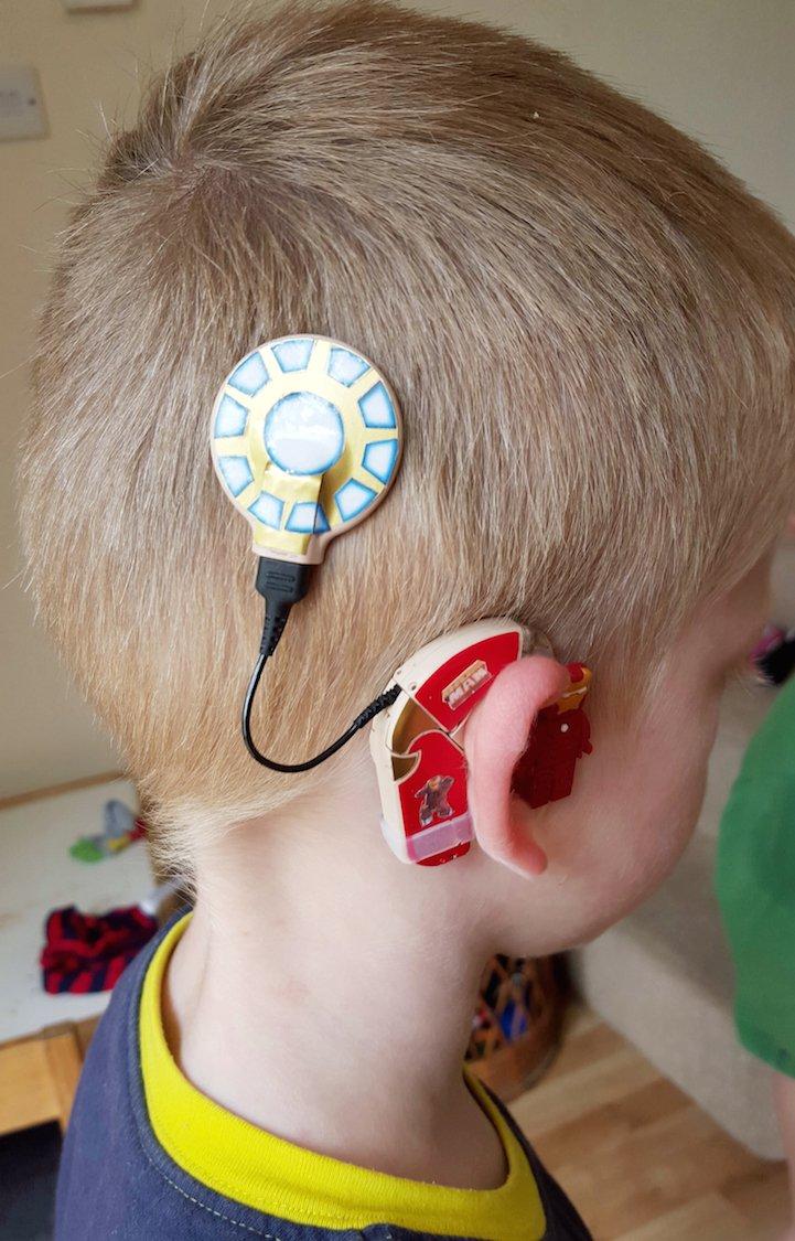 Dispositivo decorato per bimbi sordi