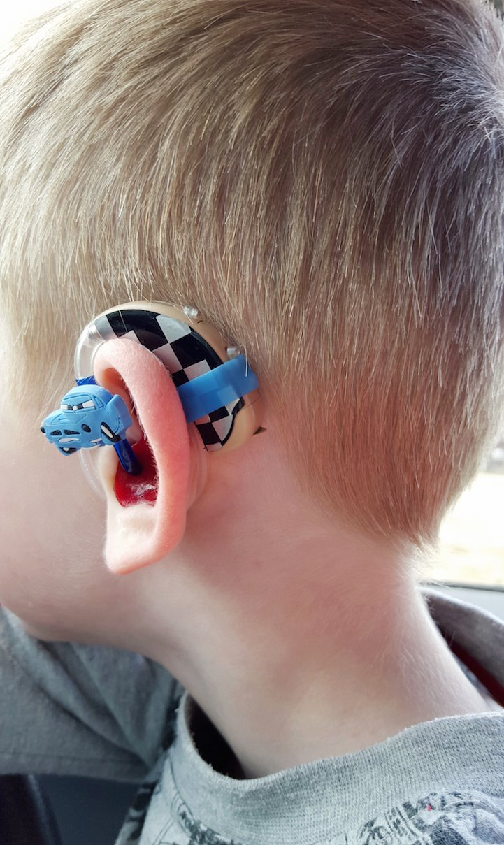 Dispositivo acustico colorato