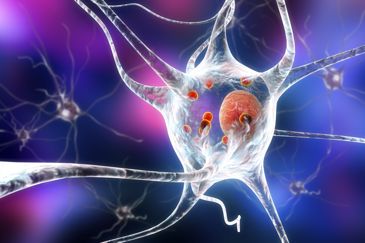 neuroni parkinson