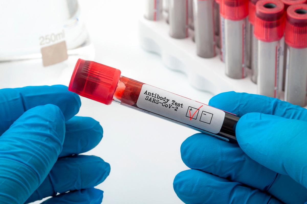 plasma coronavirus sindaco robbio