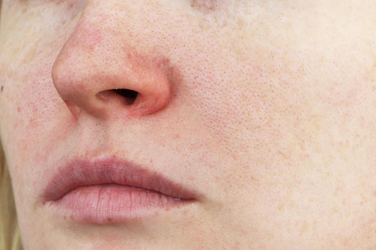 Naso arrossato
